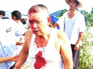 Пострадавший от рук нанятых бандитов крестьянин. Фото с epochtimes.com