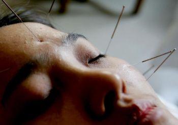 Иглоукалывание - важная часть китайской медицины. Фото: China Photos /Getty Images