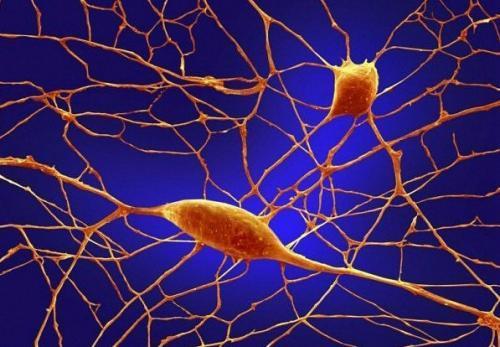Нейроны (клетки, генерирующие и передающие нервные импульсы по длинным отросткам к  другим нейронам).  Воздействие алкоголя и других токсичных веществ имеют негативные последствия для нейронов. Фото с aboluowang.сom