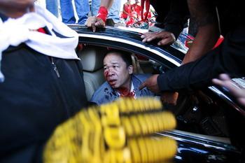Раненный водитель Нипона Промплана, 12 апреля 2009г. Фото: Athit Perawongmetha/Getty Images