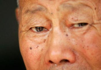 У более 10 миллионов китайцев обнаружена болезнь Альцгеймера. Фото: China Photos/Getty Images