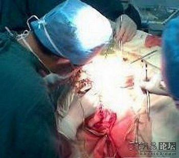Китайские хирурги по ошибке прооперировали не ту ногу пациента. Фото с epochtimes.com