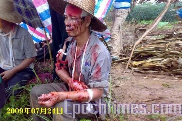 Пострадавшие во время кровавой бойни крестьяне. Фото: The Epoch Times