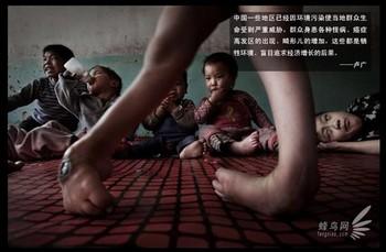 Провинция Шаньси является наиболее загрязнённым районом Китая. В этой провинции также наибольший процент детей с врождёнными дефектами. На фото: крестьянская семья взяла на воспитание 17 детей-инвалидов. 15 апреля 2009 года. Фото: Лу Гуан