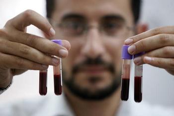 Кровь, как зеркало здоровья. В медицине анализ крови является первичным обязательным исследованием при лечении любой болезни. Фото: Abid Katib/Getty Images