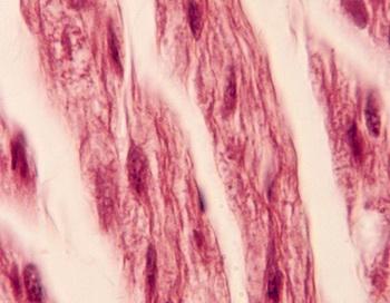 Память клеток: Исследователи предполагают, что люди, перенесшие операцию по пересадке сердца, пережили личностные изменения из-за того, что  память хранится в клетках. Фото с сайта photos.com