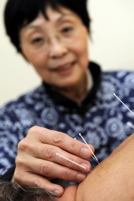 Врач китайской медицины лечит спину пациента с помощью иглоукалывания. Профилактика и ранняя диагностика заболевания дают возможность использовать все виды доступных средств для лечения. Фото: Thomas Лонес/AFP/Getty Images.