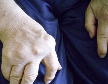 Новый компьютеризированный метод лечения принесет облегчение при ревматических болях  в суставах. Фото: Uta Herbert/pixelio.de