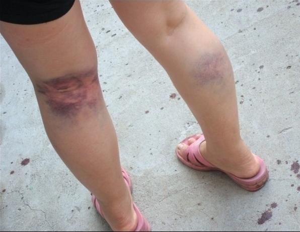 Синяки от ударов палкой на ногах у Линь Имэй. Провинция Фуцзянь. Август 2011 год. Фото прислал житель деревни