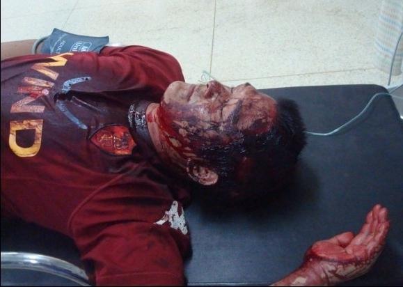 Избитый людьми в полицейской форме Ли Чжишэнь 12 часов был без сознания. Провинция Фуцзянь. Август 2011 год. Фото прислал житель деревни