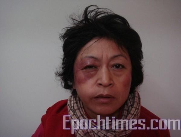 Избитая полицейскими шанхайская апеллянтка Ши Жуйсинь. Фото: The Epoch Times