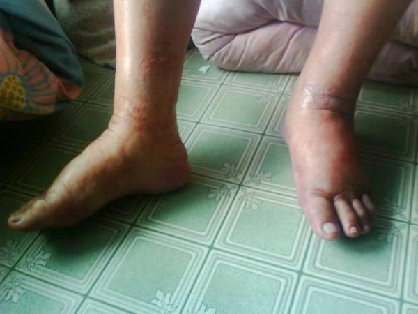 Сунь Фуди после освобождения из исправительного лагеря. Апрель 2010 год