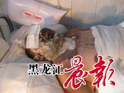 После попытки самосожжения у мужчины сильно обгорело лицо, но опасности для жизни нет. Фото с aboluowang.com