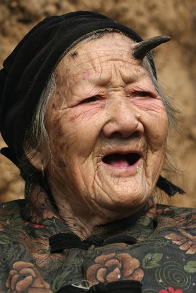 У столетней китаянки начали расти рога.Фото:epochtimes.com