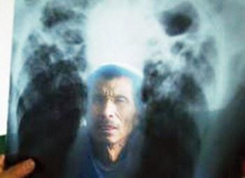 В Китае от запыления лёгких каждый год умирает шесть тысяч шахтёров. Фото с news.aweb.com.cn