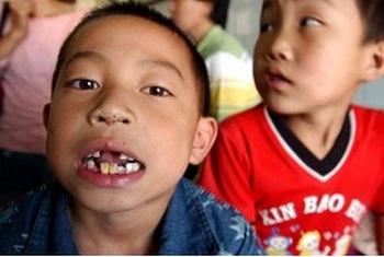 Отравление свинцом отрицательно влияет на развитие детей. Фото с epochtimes.com