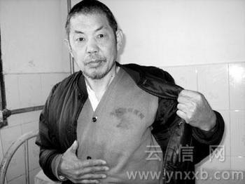 Сюй Линьдун, житель провинции Хэнань, которого власти на 6 лет упекли в психиатрическую больницу за попытку пожаловаться на коррупцию местных чиновников. Фото с epochtimes.com