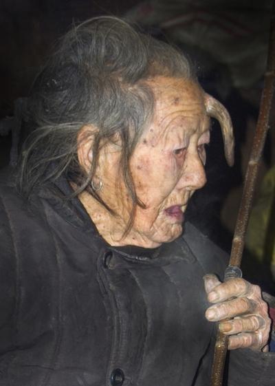 У столетней китаянки вырос длинный рог. Фото с epochtimes.com