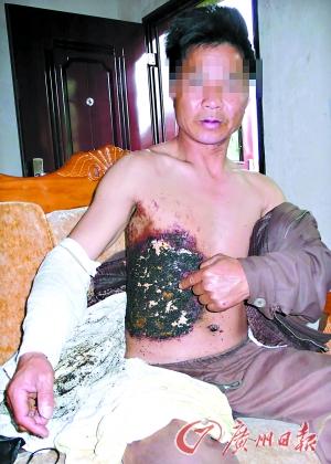 В результате взрыва мобильного телефона житель города Гуанчжоу получил сильные ожоги. 2009 год. Фото: Гуанчжоу Жибао