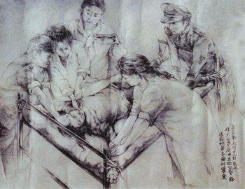 Изображение насильственного кормления, которое часто применяют полицейские в Китае к сторонникам Фалуньгун, объявившим голодовку в знак протеста незаконному преследованию. Через нос в желудок вводится трубка, через которую вливают жидкую пищу или же в качестве пытки — раствор соли или перца.