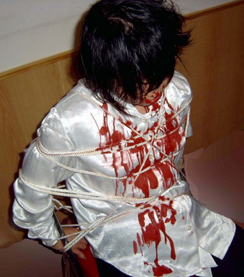 Результаты пыток над последователями Фалуньгун. Фото: minghui.org
