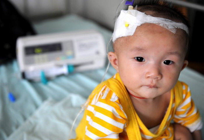 Ребёнок, который страдает от почечных камней после употребления некачественного сухого молока, проходит четвёртый курс лечения в детской больнице. 22 сентября 2008 г., г. Чэнду провинции Сычуань, Китай. Фото: China Photos/Getty Images