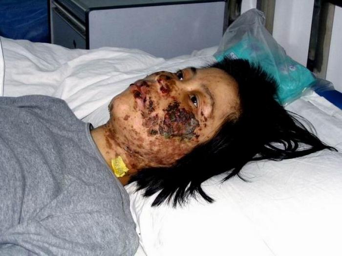 Лицо Гао Жунжун было изуродовано электрическими дубинками в исправительно-трудовом лагере Луннань в городе Шэньян — она погибла от пыток. Фото: Faluninfo.net