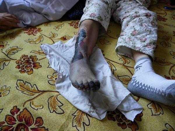Повреждённая нога Сун Хуэйлань. Фото: minghui.org
