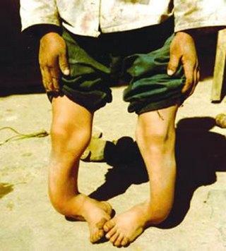 Одно из последствий отравления фтором. Фото: gzdsb.gog.com.cn