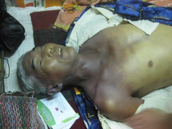 Последователь Фалуньгун Ли Кунсян после пыток. Провинция Чжэцзян. Ноябрь 2011 год. Фото: minghui.org