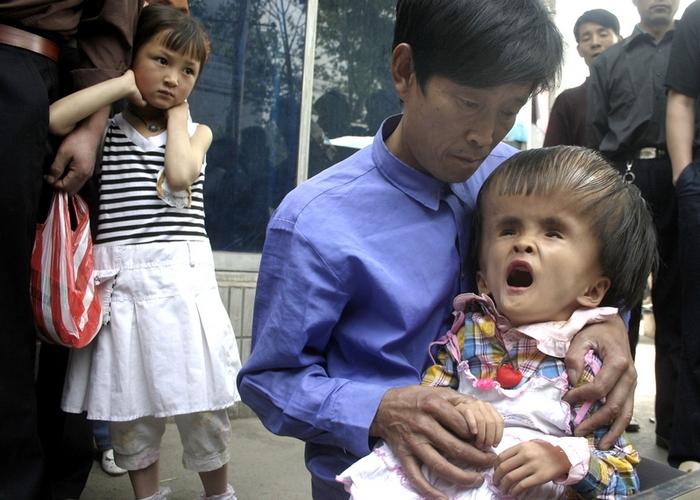 Каждые 30 секунд в Китае рождается ребёнок с дефектом. Фото: STR / AFP