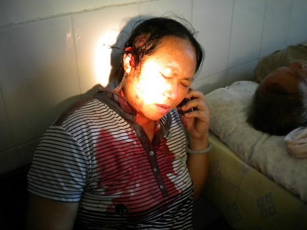Крестьяне, избитые полицией во время подавления протестов. Провинции Хайнань. Апрель 2012 год. Фото с molihua.org