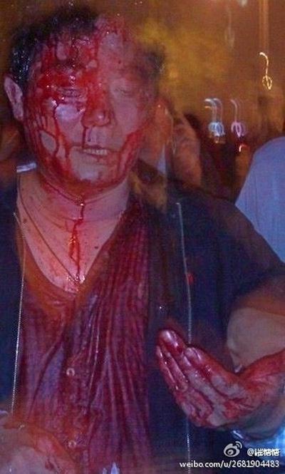 Избитые полицией участники протеста. Город Чунцин. Апрель 2012 год. Фото с epochtimes.com