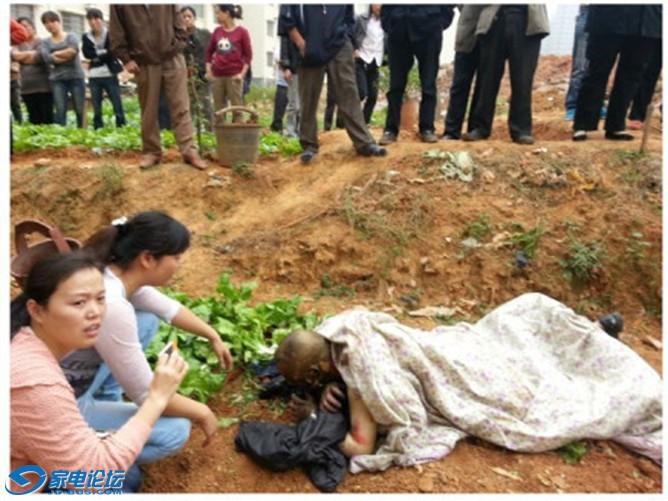 У Ши Канмина обгорело 93% тела. Провинция Хунань. Октябрь 2012 года. Фото с epochtimes.com