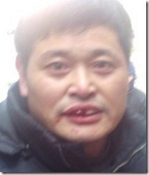 Избитый полицейскими член христианской домашней церкви Ло Сэньтян. Провинция Чжэцзян. Декабрь 2011 год. Фото: China Aid Association