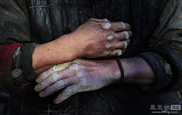 Власти пекинского района Тунчжоу обнаружили четыре подпольных цеха по производству соевого творога тофу, в которых использовался рабский труд умственно отсталых людей. На фото руки одного из таких рабочих. 3 декабря 2011 год. Фото: Синьцзиньбао