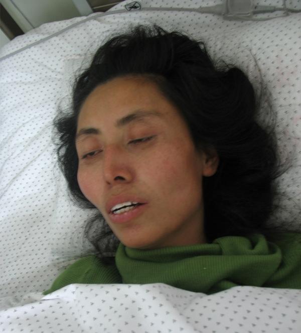 Последовательница Фалуньгун Сун Цайхун в больнице после пыток. Город Хулудао, провинция Ляонин. Январь 2012 год. Фото: minghui.org