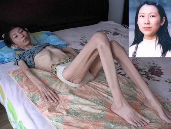 Чжао Е, последовательница Фалуньгун, после заключения в лагере. Фото с epochtimes.com