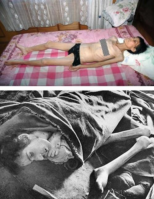 На верхнем фото Сунь Шусян, последовательница Фалуньгун, после заключения в лагере. На нижнем фото узница нацистского лагеря Освенцим. Фото с epochtimes.com
