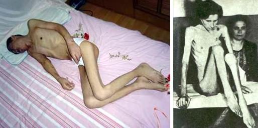 На фото слева Ань Сэньбьяо, последователь Фалуньгун, после заключения в лагере. На фото справа узница нацистского лагеря Освенцим. Фото с epochtimes.com