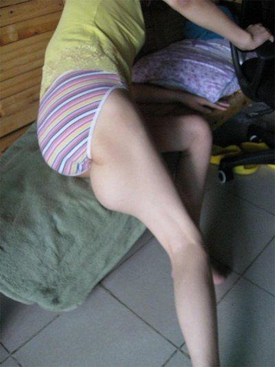 Результат пыток и инъекций неизвестных препаратов на теле Чжу Ифан. Фото с minghui.org