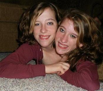 Эбигейл и Бриттани Хензель, сиамские близняшки. Фото с сайта health-ua.org
