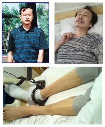 Последователь Фалуньгун Ди Хуэй находится в больнице в критическом состоянии после пыток в полиции. Фото: minghui.org