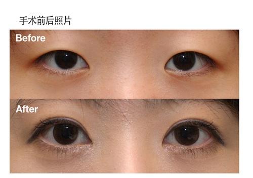 Популярная в Китае пластическая операция «разделение век». Сверху фото до операции, снизу — после. Фото с douban.com