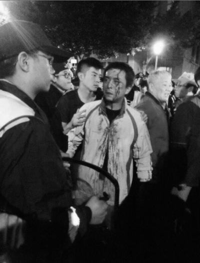 Студенту пробили голову во время столкновения с полицией возле Исполнительного Юаня в Тайбэе в ночь на 24 марта 2014 года. Фото: Twitter