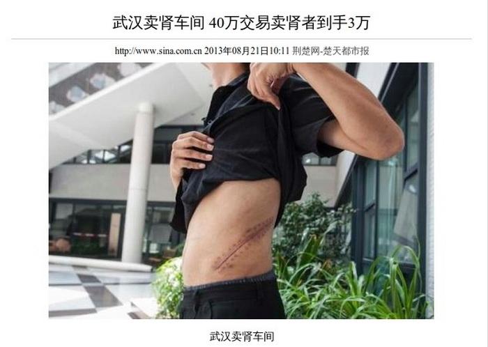 Мужчина показывает шрам после удаления почки. Китайская полиция недавно задержала банду, занимавшуюся трансплантацией органов в Ухане. Фото с сайта www.theepochtimes.com