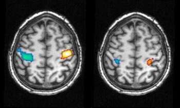 Активность мозга во время движения рук во время бодрствования (слева) и во сне (справа). Синие области показывают активность во время движения правой руки (левое полушарие головного мозга), в то время как красные показывают активность мозга при движении левой рукой (правое полушарие). Фото с сайта theepochtimes.com