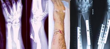 Перелом руки. Мозг изменяет свою субстанцию для компенсации недостающей руки. Фото: pcgames.de
