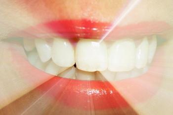 Отбеливание зубов в домашних условиях. Фото: morguefile.com