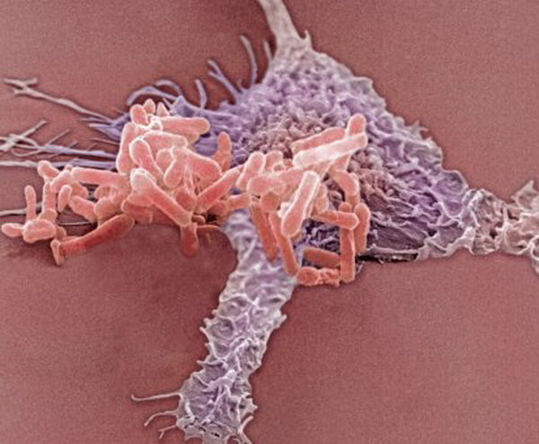 Синегнойная палочка занимает особое место среди возбудителей инфекций мочевыводящих путей, т. к. ее возбудитель отличается природной устойчивостью к большинству антимикробных препаратов, применяемых в клиниках. На фото повседневная работа макрофагов, защищающих нас от подобных захватчиков. Макрофаги образуются из моноцитов, вид лейкоцитов. Макрофаги играют важную роль в поддержании иммунного ответа. Фото: Dr.David Phillips/Getty Images